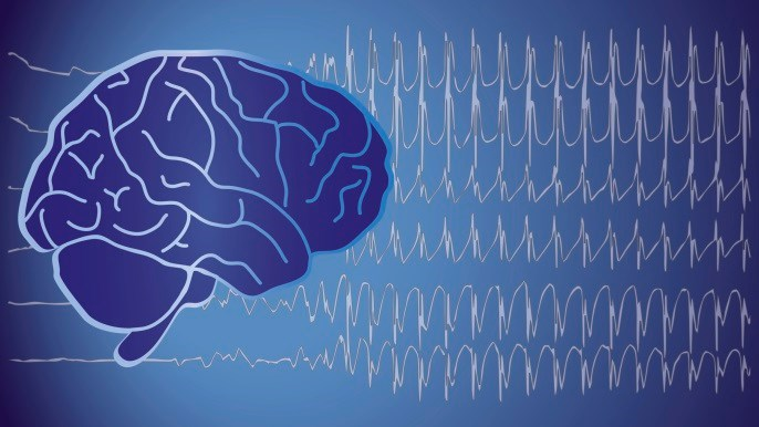 The results indicate a 10-fold increased risk of future autism in patients diagnosed with epilepsy.