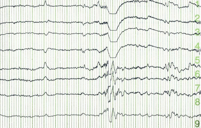 Identifying Pediatric Seizures With Hemispheric Regional Cerebral Oxygen Saturation