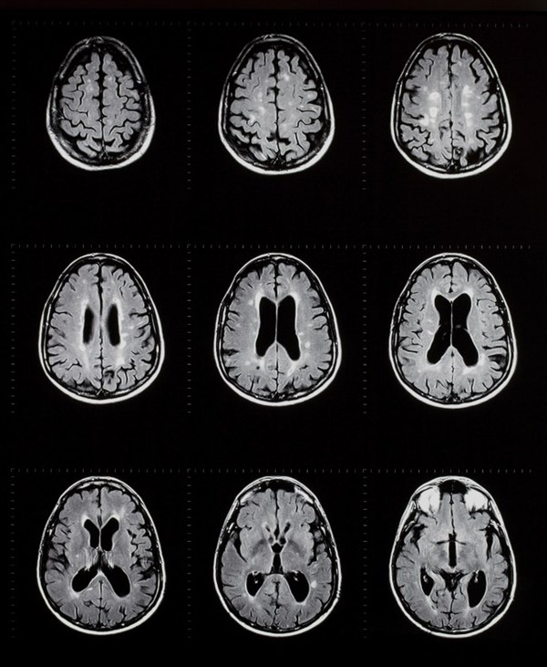 Ocrelizumab Reduces Disease Activity in Primary Progressive MS