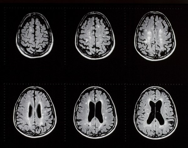 Case Report: Focus on CNS Pathology May Benefit Rescue From Rebound MS