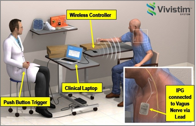 Vagus Nerve Stimulation Safe, Feasible for Stroke Recovery