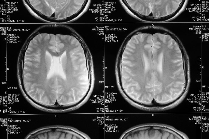 Pediatric Depression Linked to Loss of Grey Matter