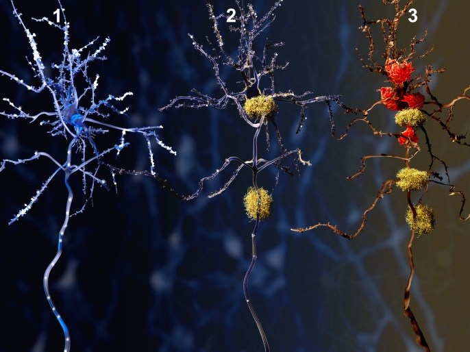 Dementia, Alzheimer Disease Risk Increased With Lower Branched-Chain Amino Acid Levels