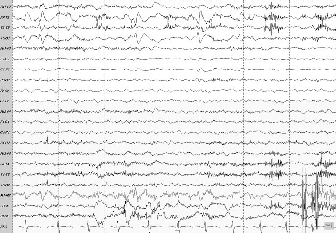 Case Study: Surgical Tx of Refractory Seizures in a Child with Hx of AVM, ICH