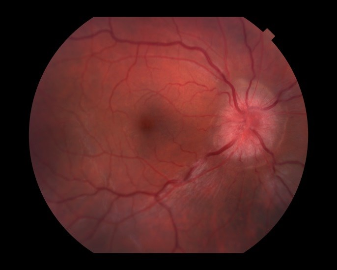 Improvement in Acute Optic Neuritis Similar With IV, Oral Corticosteroids