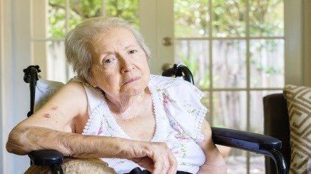 Frailty Could Increase Susceptibility for Dementia