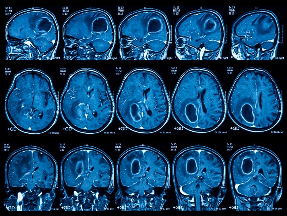 In Glioblastoma, Personalized Medicine is a Challenge