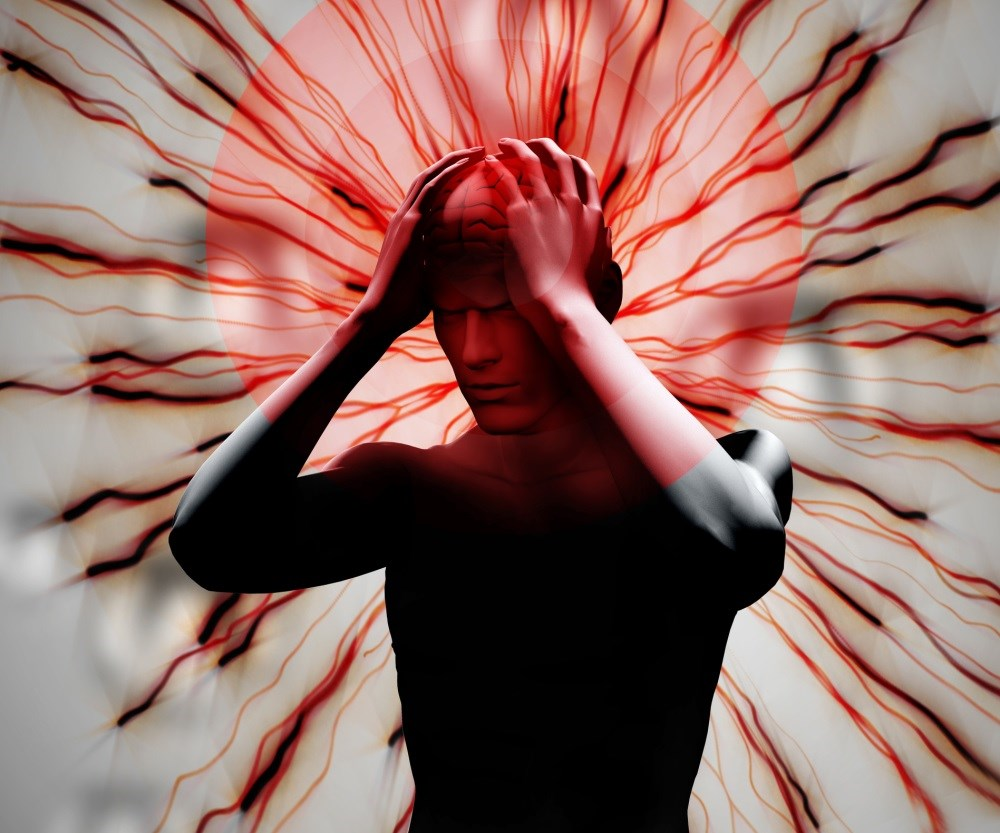 SPG Stimulation Reduces Cluster Headache Pain, Frequency