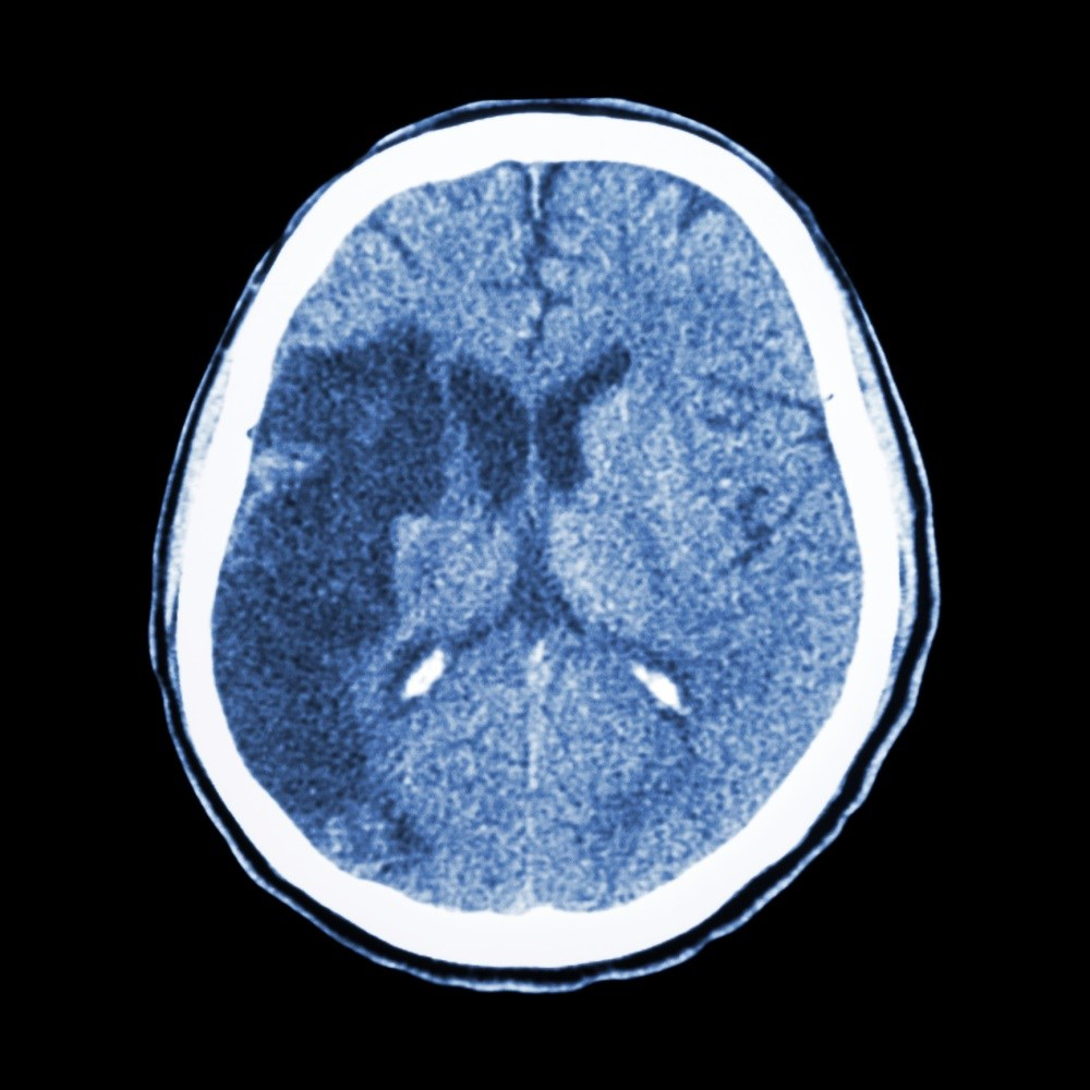 """Stable"" Survivors at Risk for Recurrent Stroke, Death"