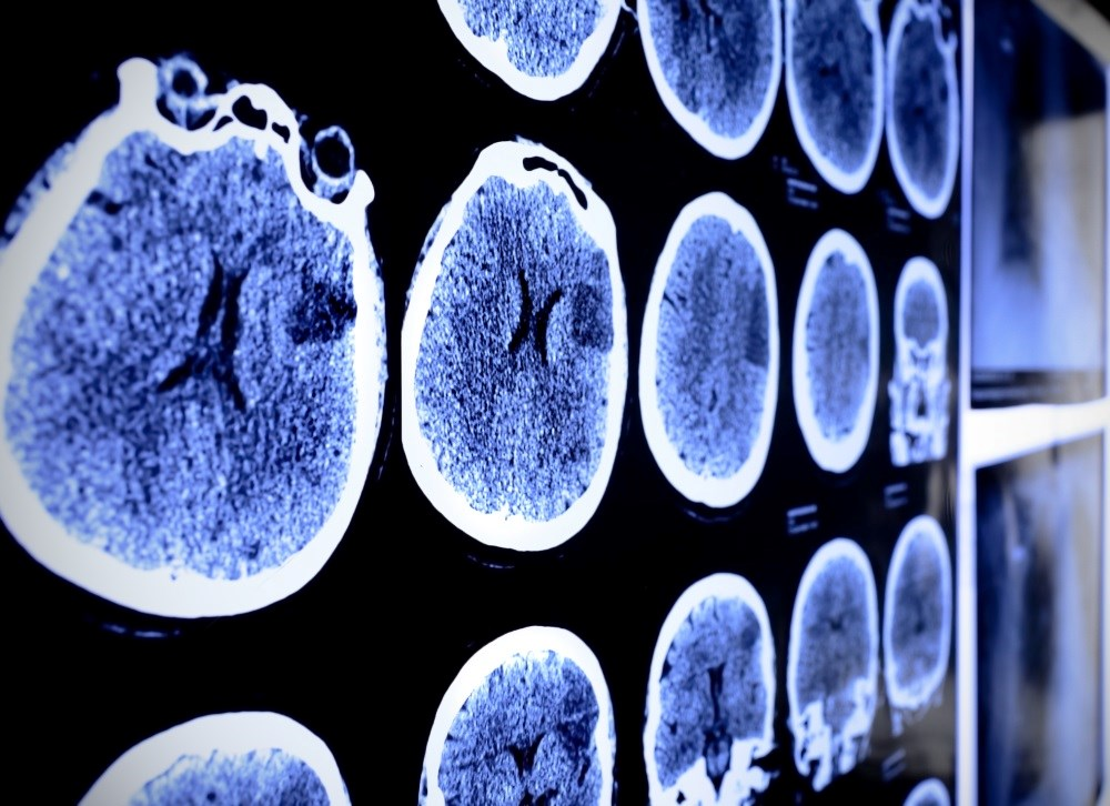 Inflammatory biomarkers may be beneficial in stroke prevention.