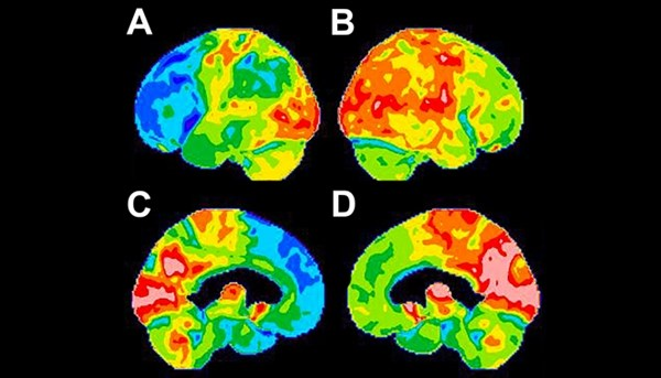 FDG-PET is a reliable tool for detecting consistent functional brain abnormalities in Parkinson disease when compared with other imaging modalities.