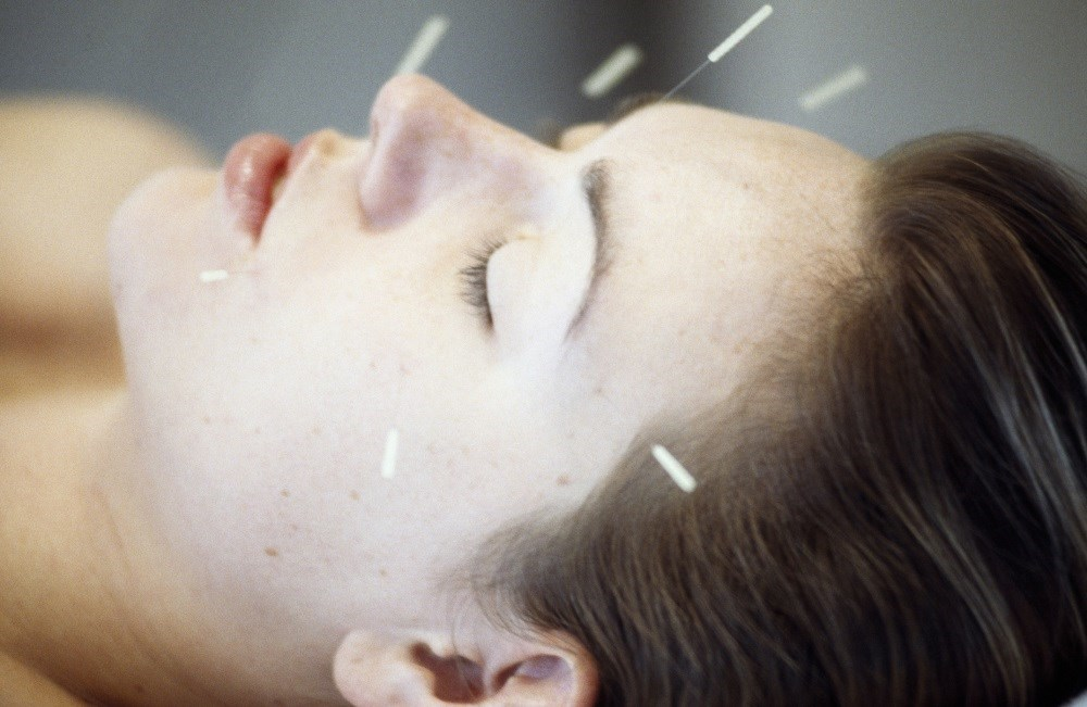 Acupuncture, neurostimulation, and other alternative treatments have been associated with up to a 50% reduction in headache days.