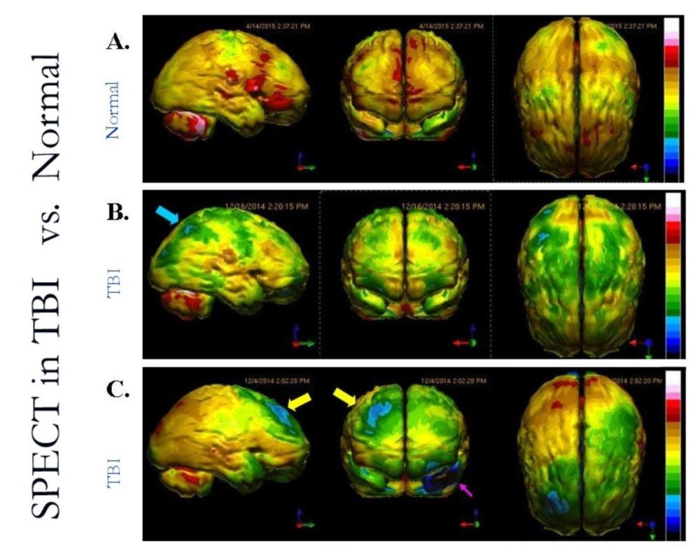 SPECT imaging can be more accurate in the diagnosis of traumatic brain injury and post-traumatic stress disorder than CT or MRI.