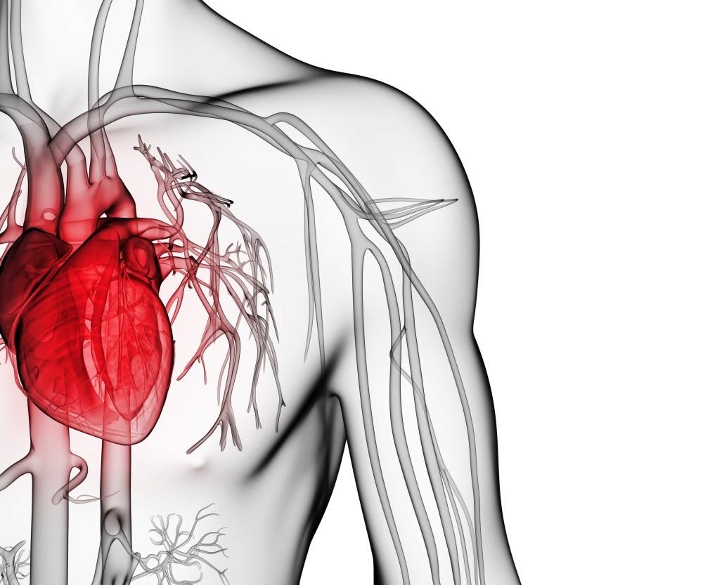 Cardiovascular, Psychiatric Comorbidity Patterns Evident in Migraine