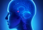 Amygdala Neurons Reduced in Adulthood With Autism
