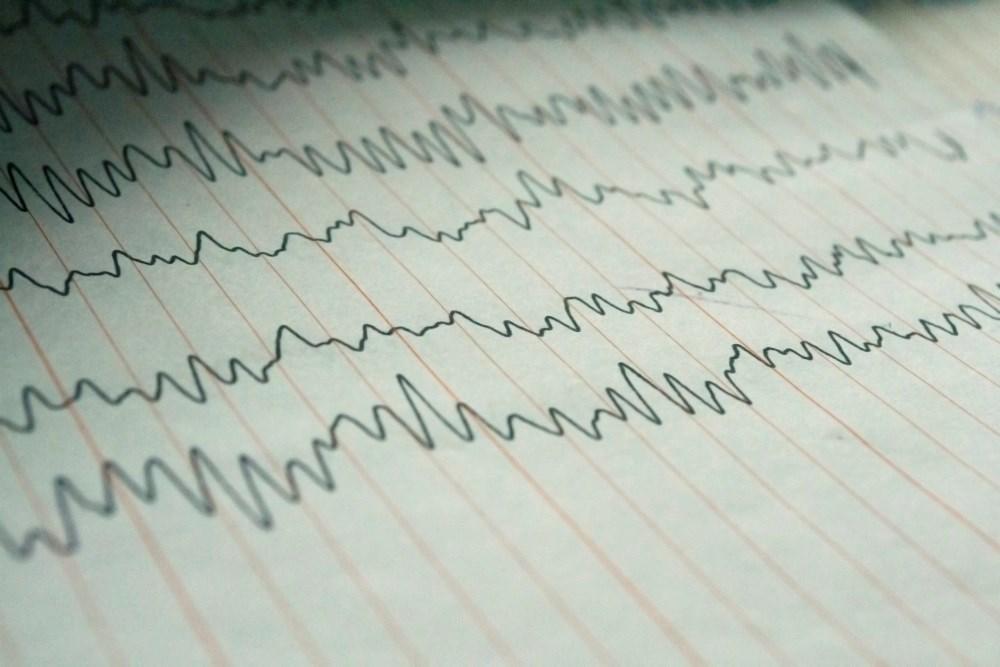 Foramen Ovale EEG Identifies Epileptogenic Zone in Mesial Temporal Lobe Epilepsy