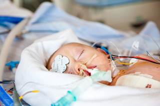 neonatal hemorrhagic stroke prevalence and outcomes
