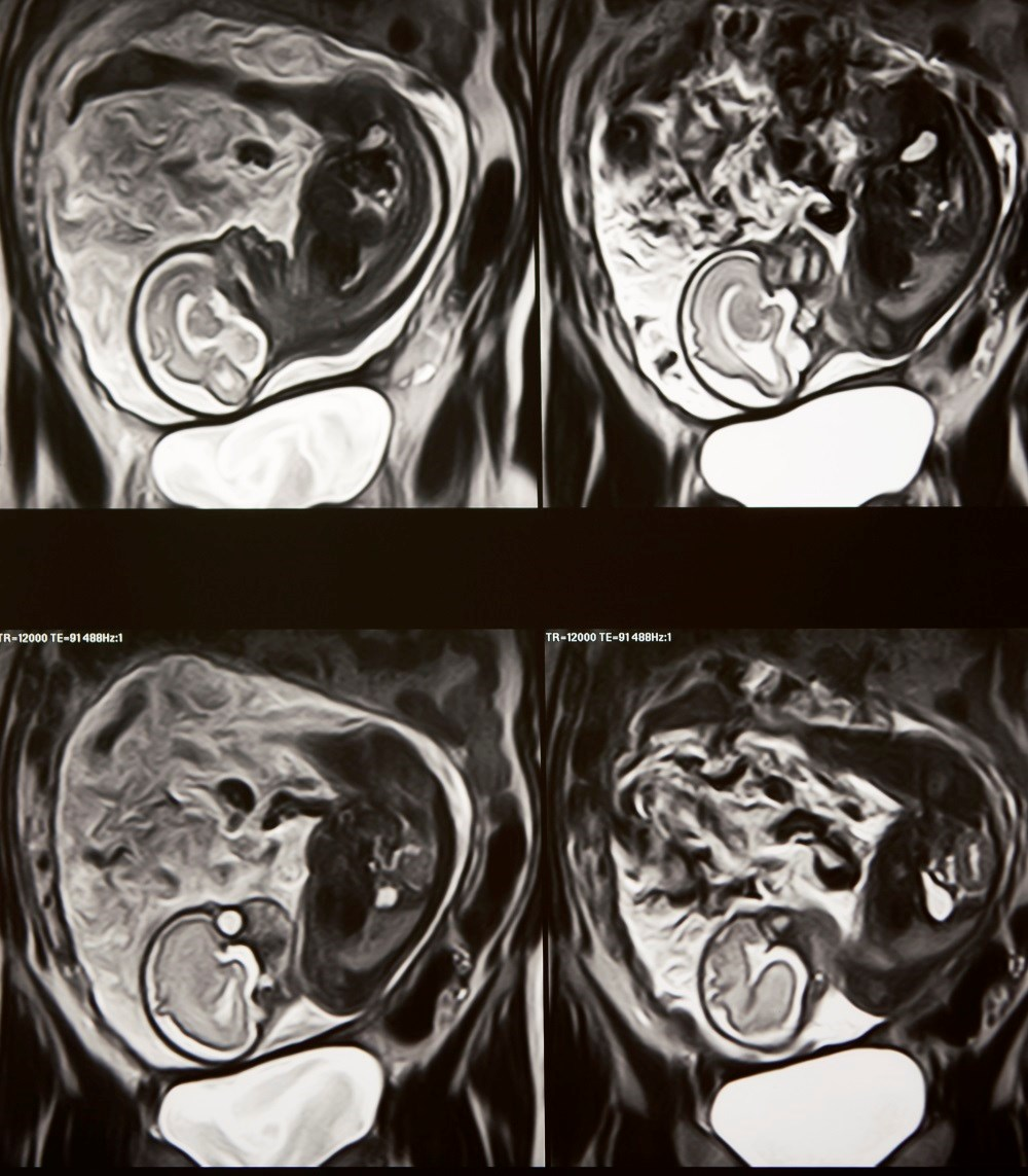 MRI Improves Diagnostic Accuracy of Fetal Brain Abnormalities