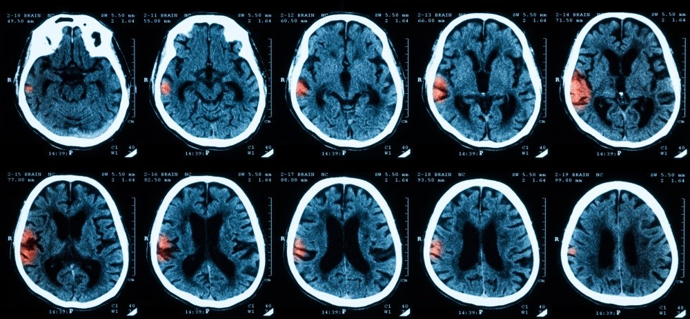 Higher Risk for Symptomatic Intracranial Hemorrhage After Endovascular Treatment for Stroke