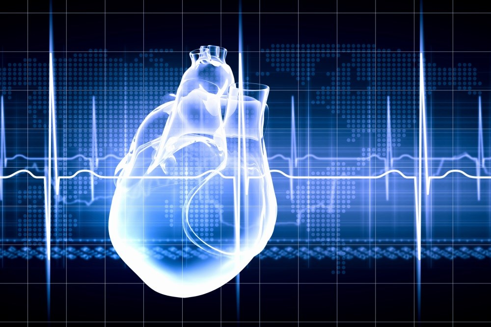 Risk for Acute Myocardial Infarction Increased in Multiple Sclerosis