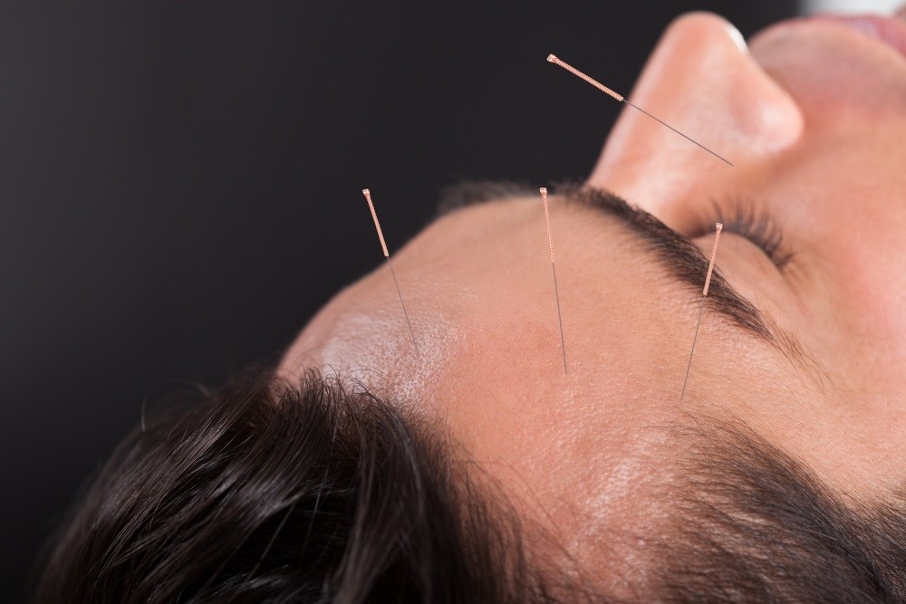 Acupuncture is commonly used in Chinese medicine to relieve migraine pain.