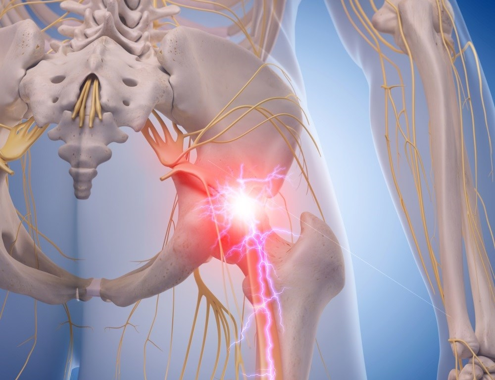 Optimizing Treatment for Patients With Chronic Sciatica: Gabapentin vs Pregabalin
