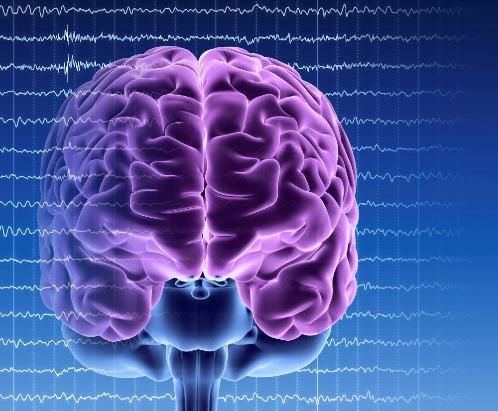The risk for late-onset epilepsy was lower in patients with higher physical activity levels and moderate alcohol intake.