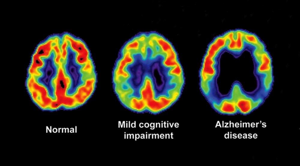 PET Scans Distinguish Alzheimer Disease From Other Neurodegenerative Diseases