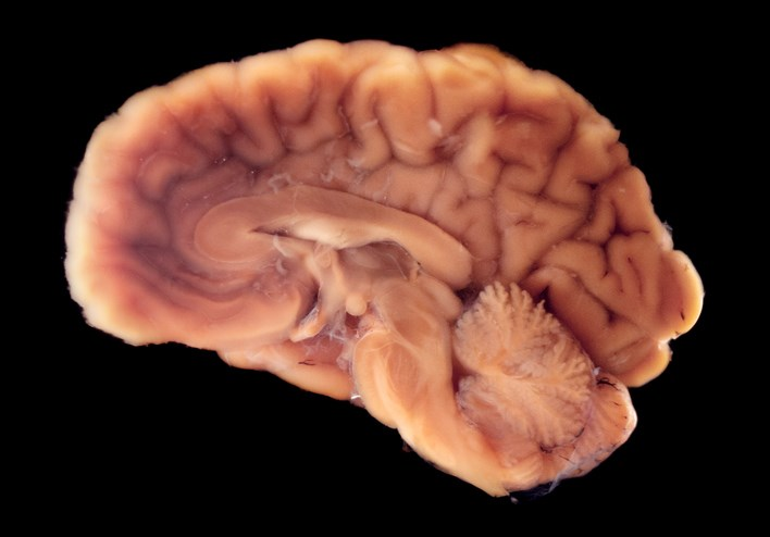 Deep Brain Stimulation Reduces Risk of Polypharmacy in Parkinson's