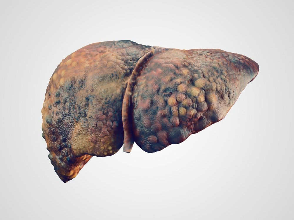 Cirrhosis Associated With Increased Stroke Risk