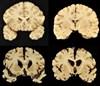 Chronic Traumatic Encephalopathy Uncommon in Treatment-Refractory Epilepsy