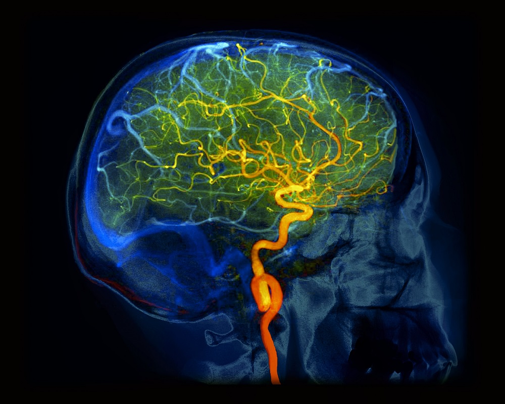 Cerebral Blood Flow and Personality: A Positron Emission ...