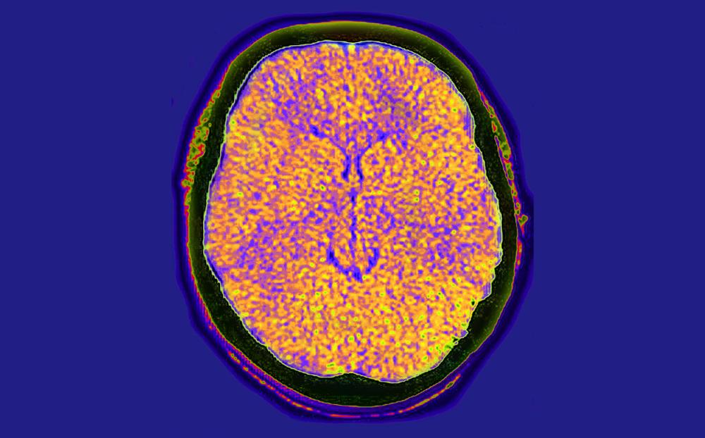 predicting cerebral edema severity after stroke