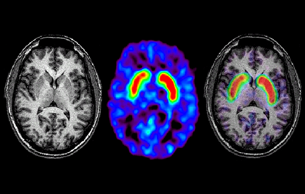 MRI in Parkinson Disease: Expanding Usability for Better Diagnostics