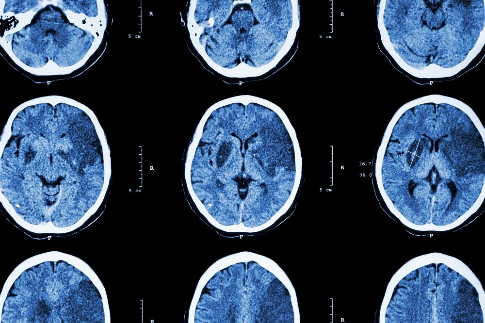 The study sought to compare treatment options used to help prevent recurrent events after ischemic stroke.