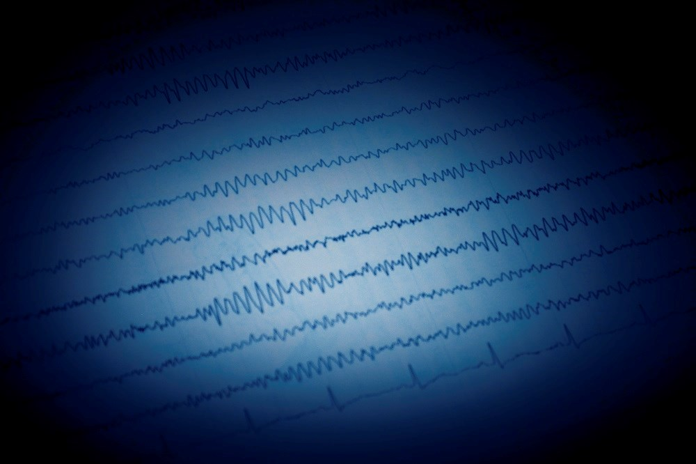 Determining Risk Factors for Epilepsy After Symptomatic Neonatal Seizures