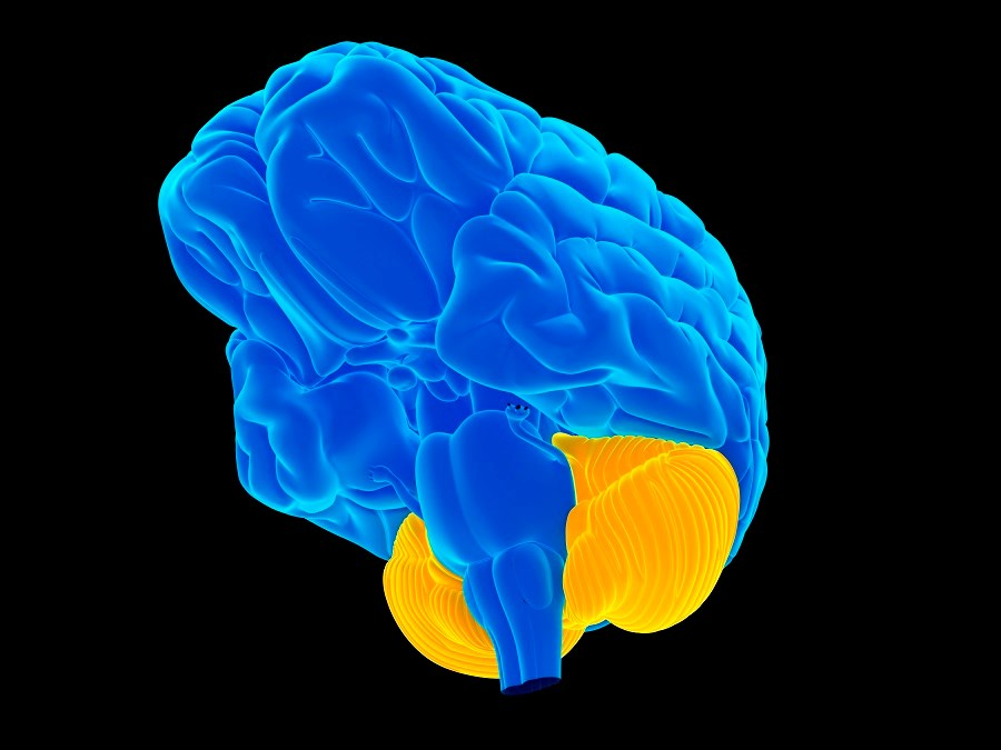 Cerebellar Deficit in Dystonia Improved With Alcohol