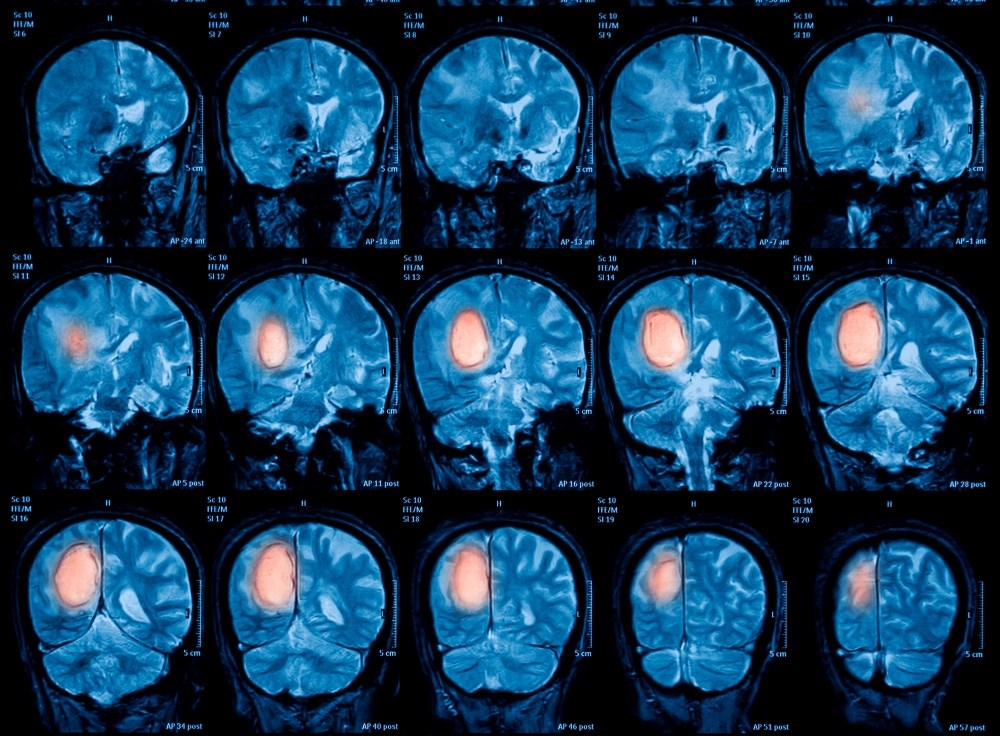 Combination treatment of temozolomide plus radiotherapy improves survival in non-co-deleted gliomas.