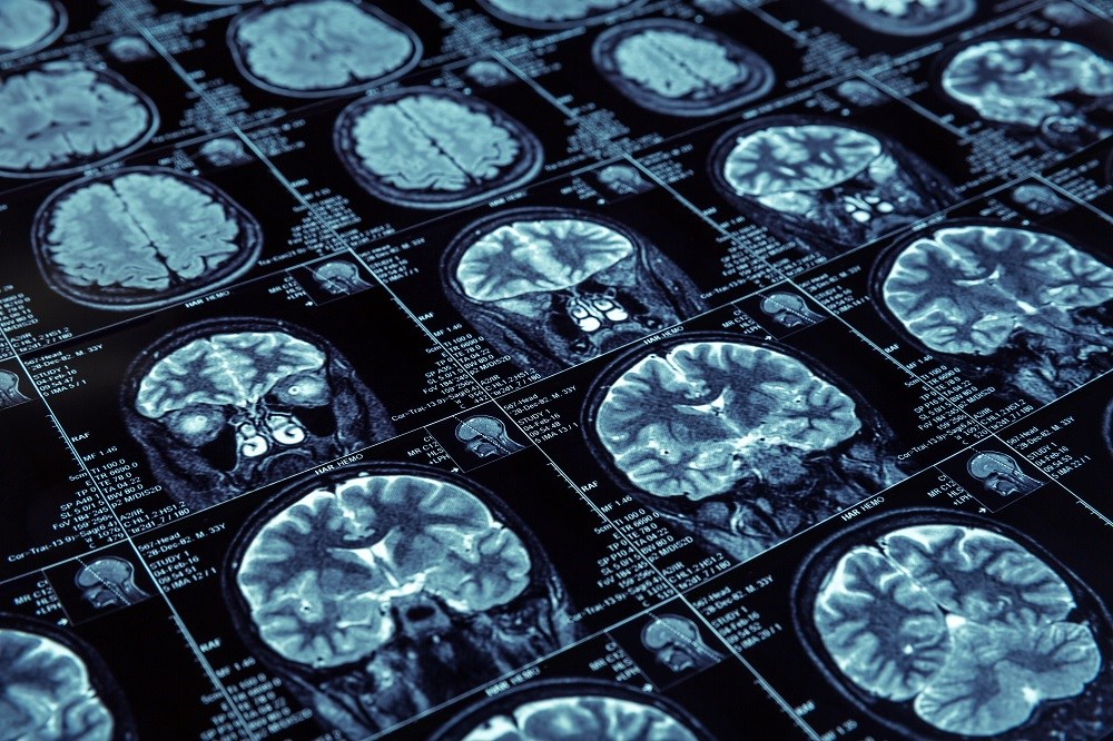 Abnormal findings on MRI and in CSF may help indicate risk of progression to dementia in patients with MCI.