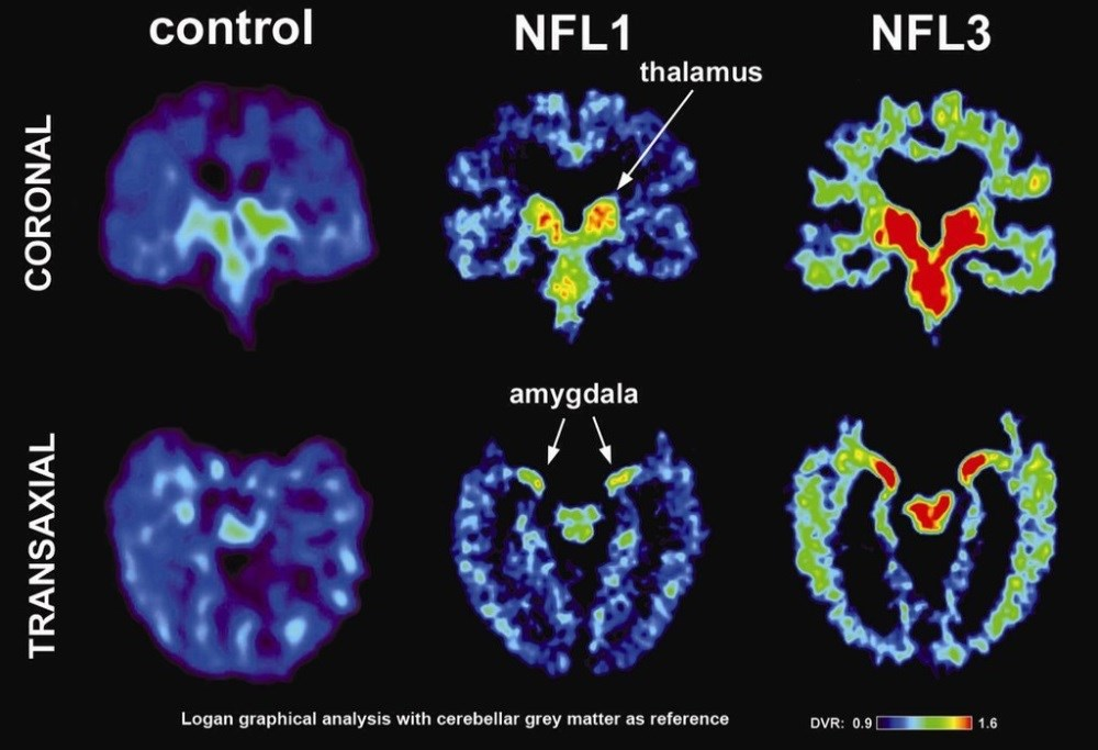 Signature tau deposition was identified in antemortem PET imaging and confirmed upon autopsy in a retired NFL player with suspected CTE.