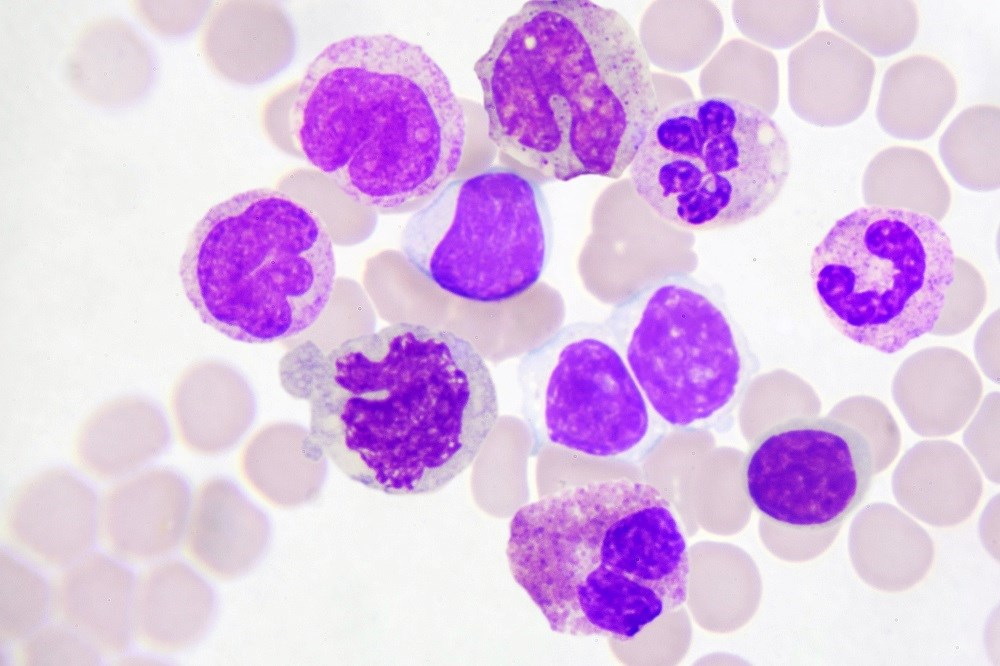 Four cases were associated with agranulocytosis, 2 had no white blood cell counts available and 1 had a high white blood cell count.