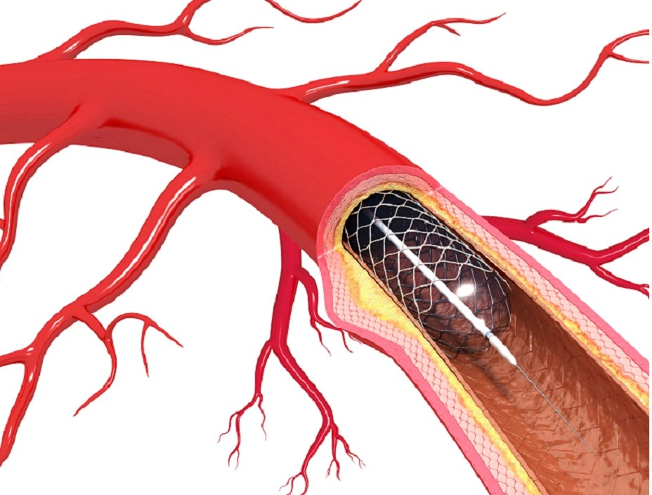 Percutaneous Transluminal Angioplasty Shown to Be Ineffective in MS