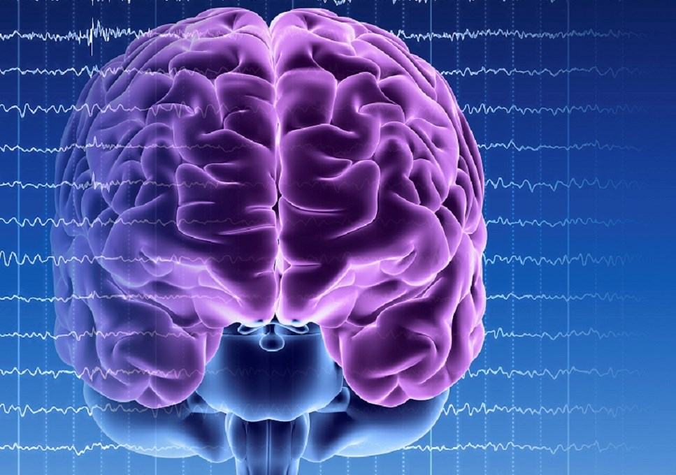 Alzheimer Disease May Benefit From Deep Brain Stimulation