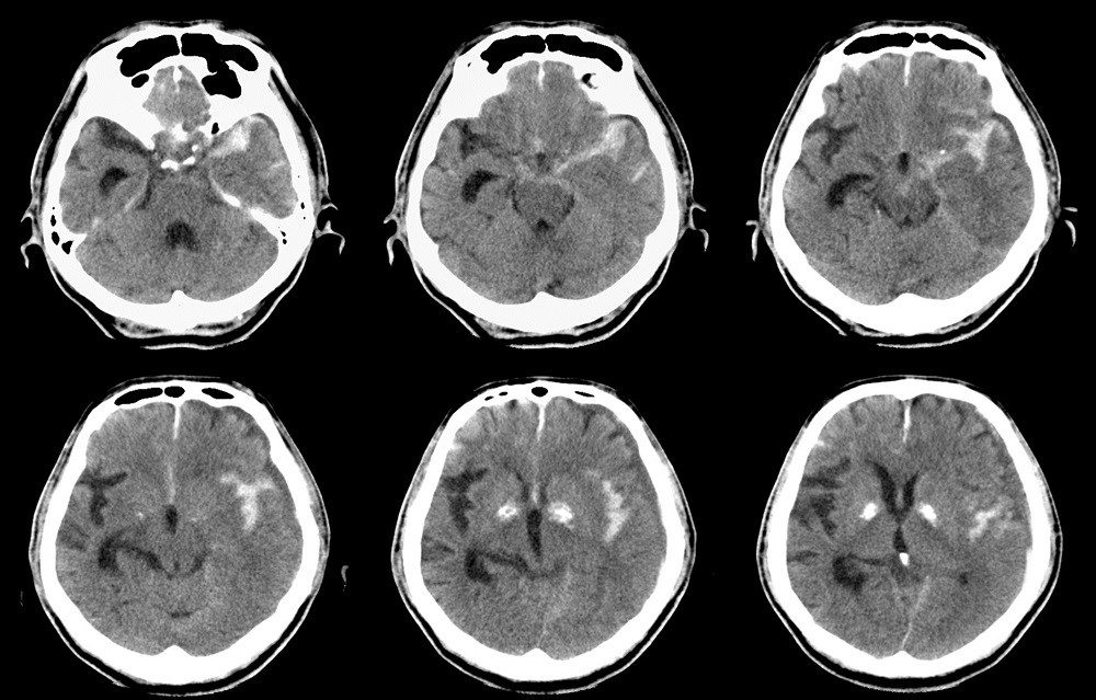 Normal perfusion neuroimaging may suggest migrainous aura as opposed to ischemic stroke.