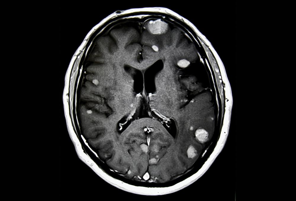 Nivolumab  Ipilimumab Shows Efficacy for Untreated Brain Mets