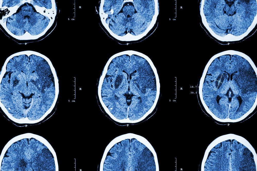 PPAR-γ Agonists May Have Benefits for Reducing Recurrent Stroke Risk