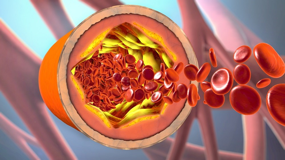 Patients with significant intracranial atherosclerotic disease had a higher likelihood of having coronary artery atherosclerosis and aortic arch.