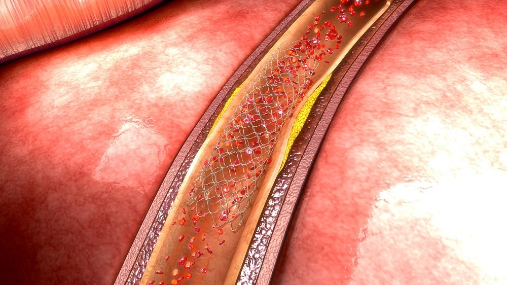 Worse Outcomes for Patients With Diabetes Undergoing PCI Despite Therapeutic Advances