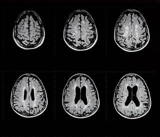 α linolenic acid associated with reduced multiple sclerosis activity