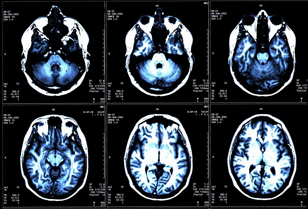 Participants in both treatment groups underwent a brain MRI to view cortical thickness.